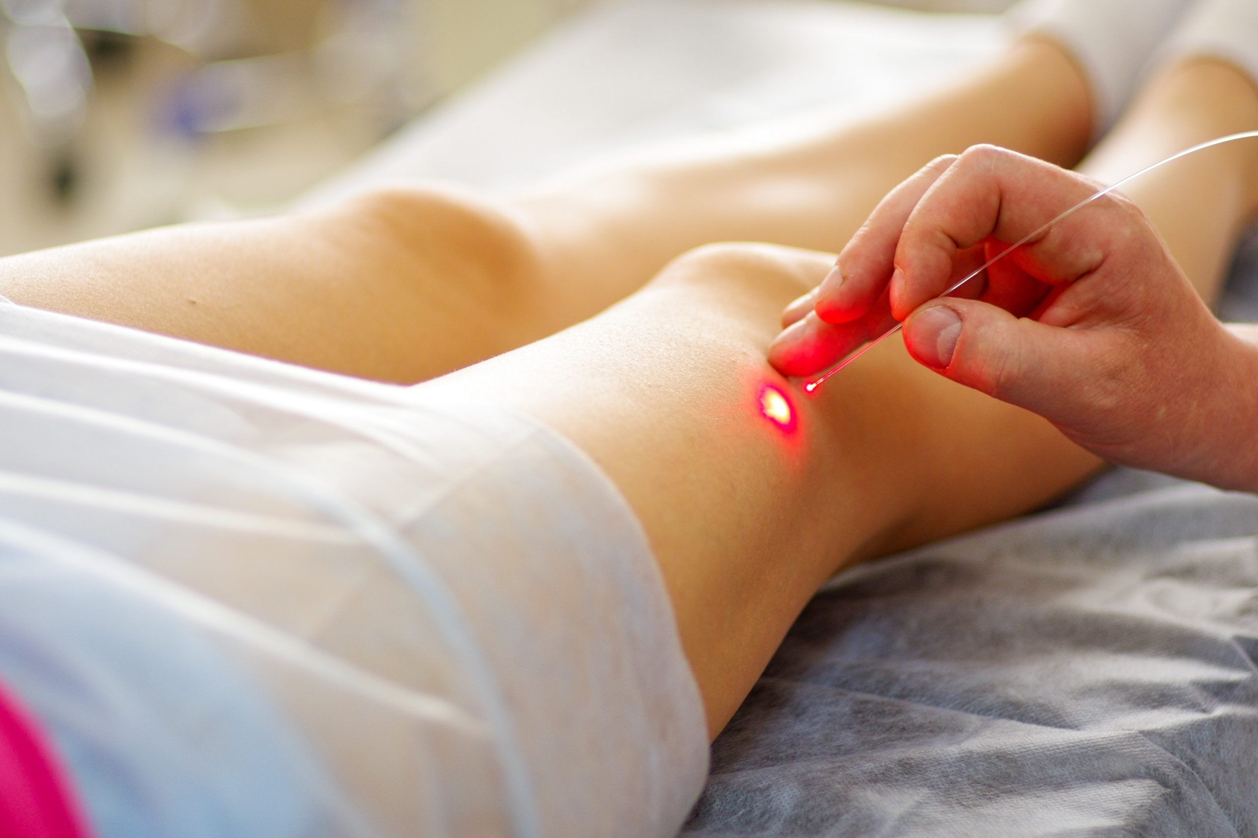 Laser Radiofrequency and sclerotherapy