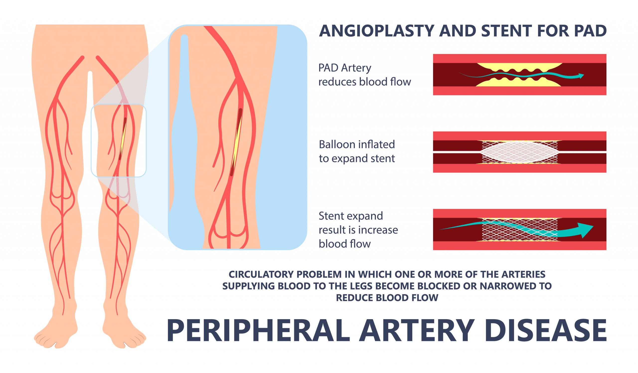 PAD angioplasty and stenting at Jordan Vascular Clinic