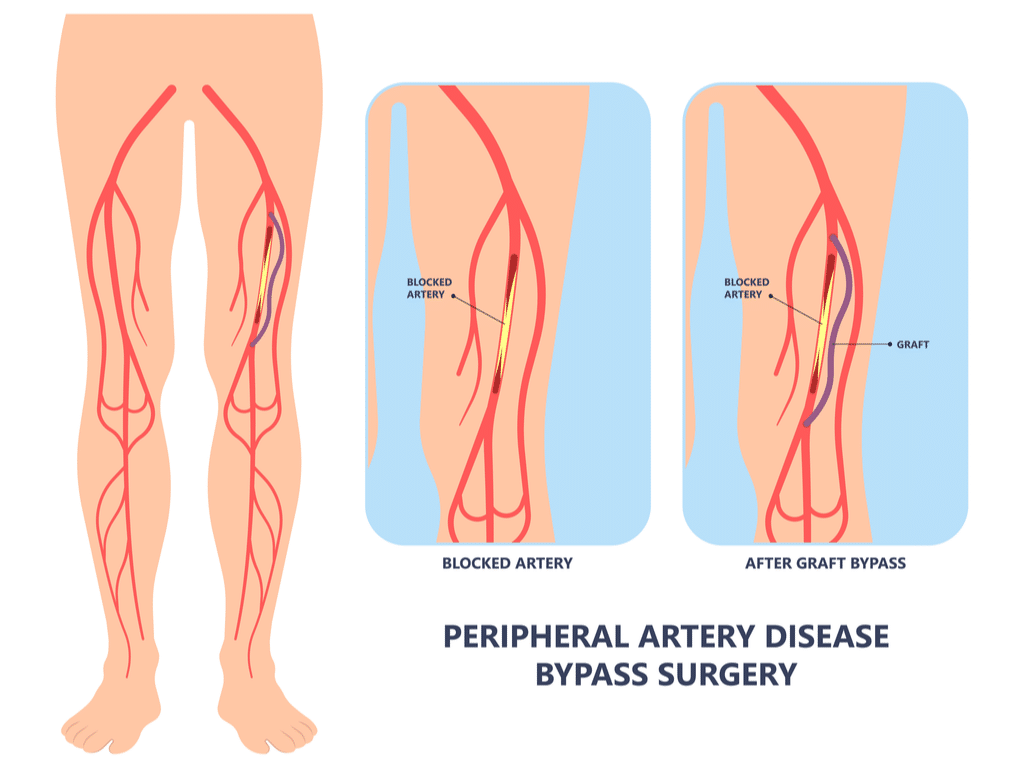 Peripheral Artery Disease Bypass Surgery
